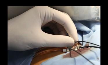 Stentul coronarian