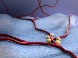 Bypass coronarian