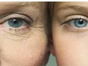 Tratament anti-age